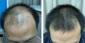 Hair MegaSpray - come si usa? – ingredienti – composizione - forum al femminile