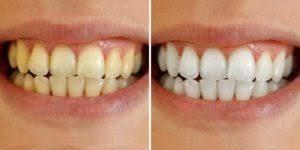Alta White Teeth