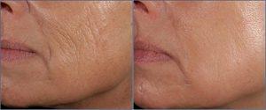 Lereel Anti Aging Skin