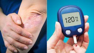 Diabetes NoMore– commenti – ingredienti - erboristeria – come si usa – composizione