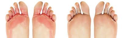 Farmaci antifungini - quali sono le compresse dal fungo del piede?